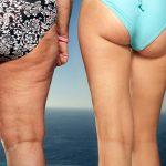 5 choses que tu dois ABSOLUMENT savoir si tu veux diminuer l'apparence de la cellulite et optimiser ta santé